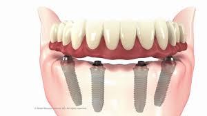 alt+Implantología de Función Inmediata para Arcadas Completas