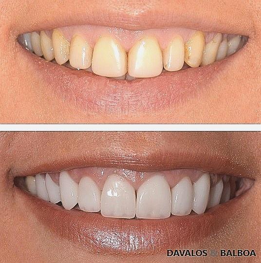 Carillas Sin Tallado En Murcia Clínica Dental En Murcia Dávalos Balboa