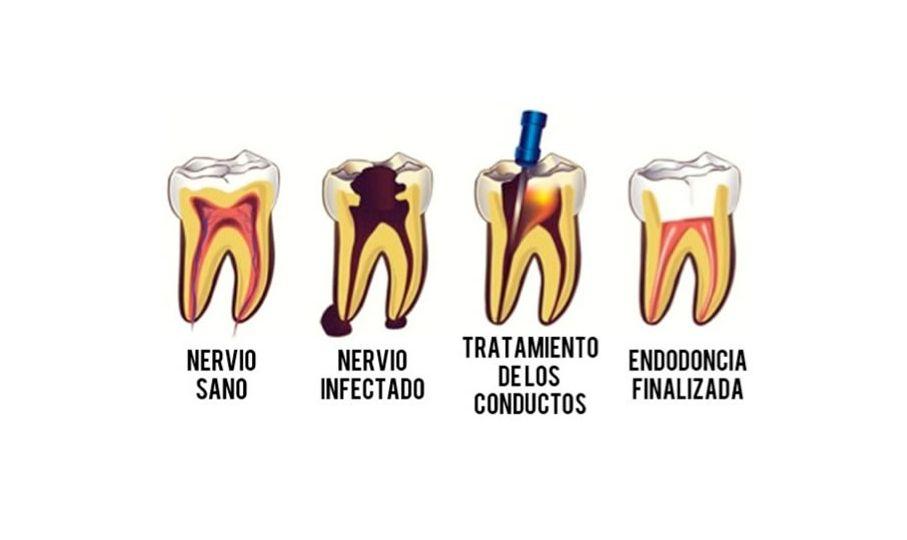 alt+endodoncia en murcia