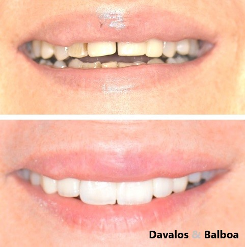 alt+Especialista en Estética Dental en Murcia+carillas