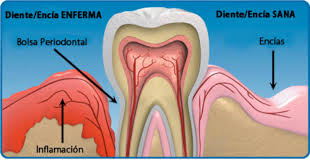 alt+medicina oral diente