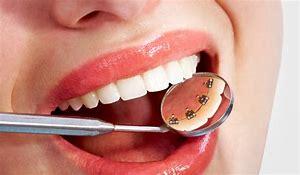 alt+ortodoncia+lingual+dentista