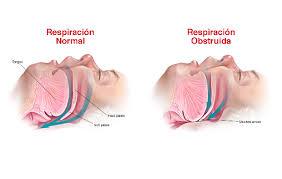 alt+ tratamiento revolucionario para la apnea del sueño oclusión vía aérea