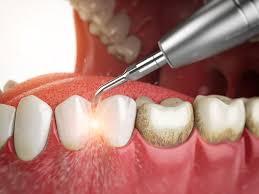 alt+limpieza dental
