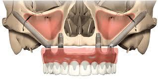 alt+implantes cigomáticos en murcia