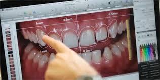 alt+mejor clinica dental murcia