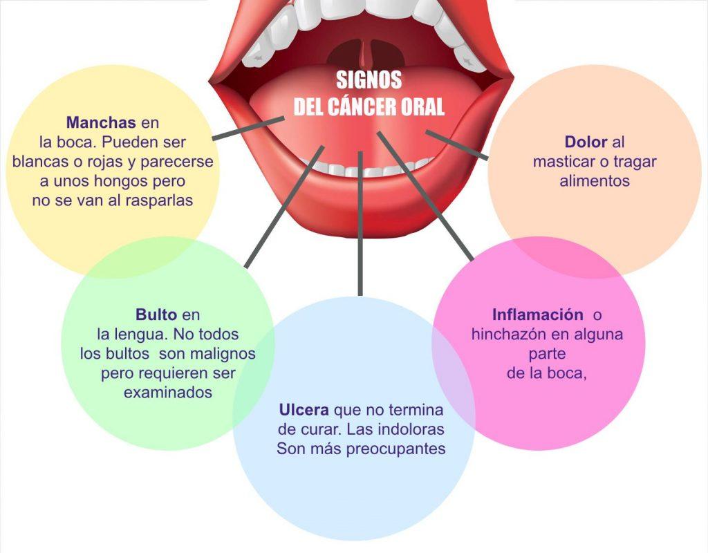 alt+signos de alerta cáncer oral