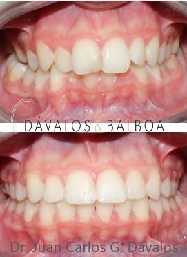 alt+Estética Dental en Murcia