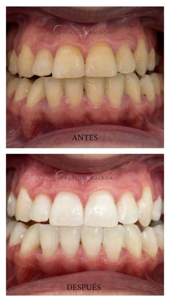 alt+Blanqueamiento Dental en Murcia. ¿Qué debes saber?