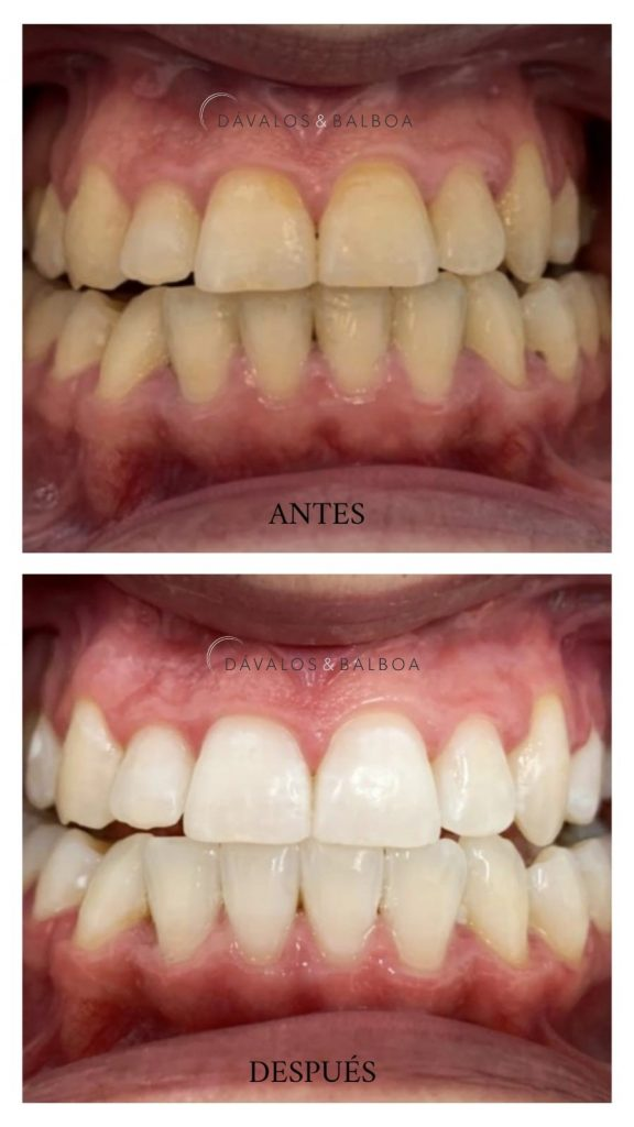 alt+Estética Dental en Murcia blanqueamiento