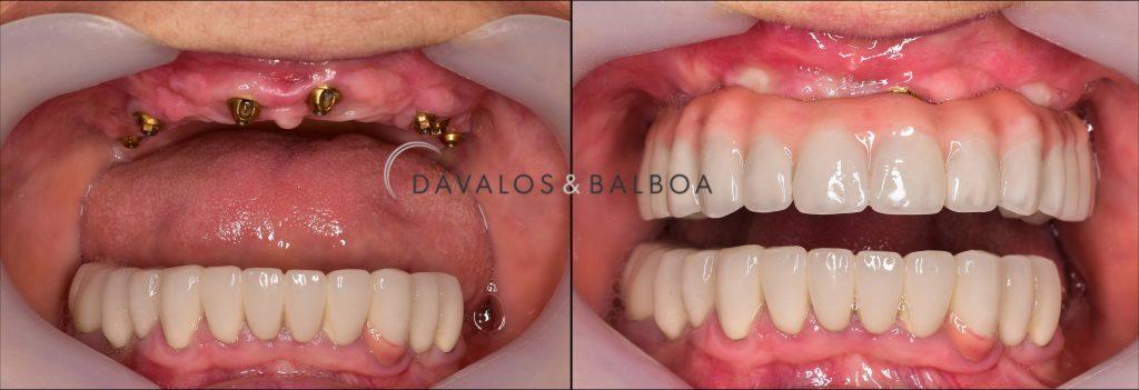 alt+Implantes Dentales con Función Inmediata en Murcia