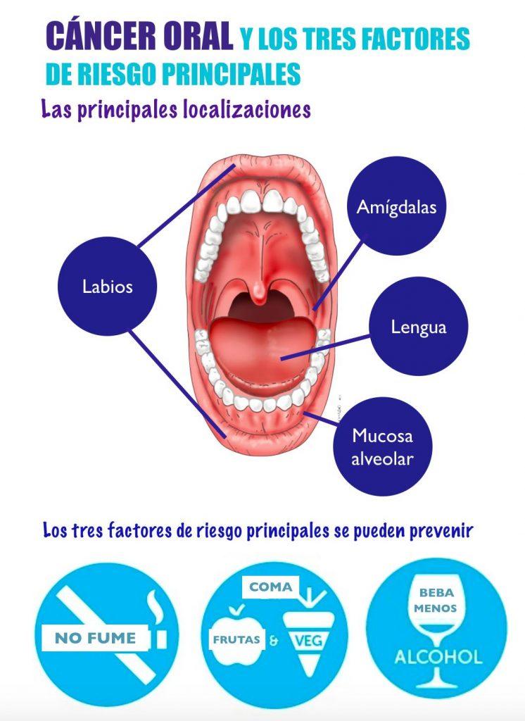 alt+Detección precoz de enfermedades orales en Murcia como prevenir