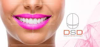 alt+Diseño Digital de la Sonrisa en Murcia