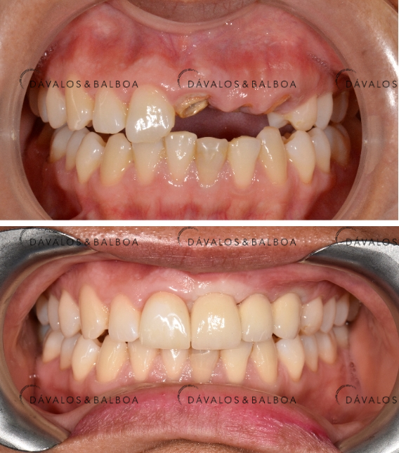 alt+¿Qué son los Implantes Dentales? Especialista en Murcia