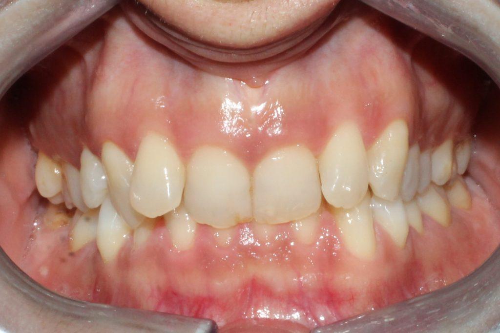alt+¿Qué es la Maloclusión Dental?