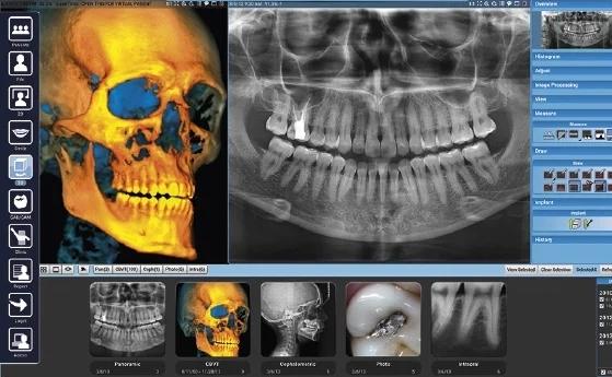 ALT+TAC 3D Dental en Murcia