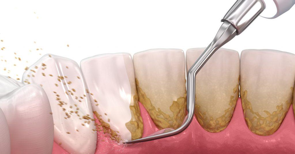 alt+Diferencia entre Limpieza Dental y Curetajes