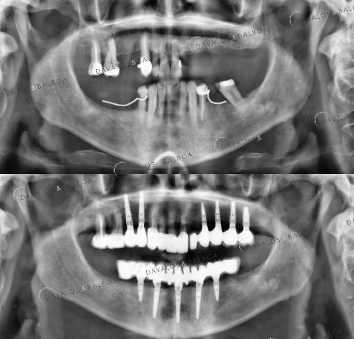 alt+Implantología con Injerto de Hueso