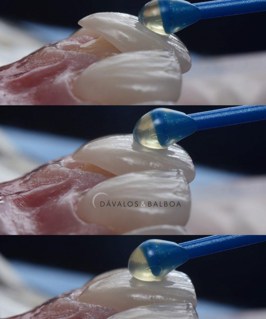 alt+Diferencia entre Carillas y Coronas Dentales.