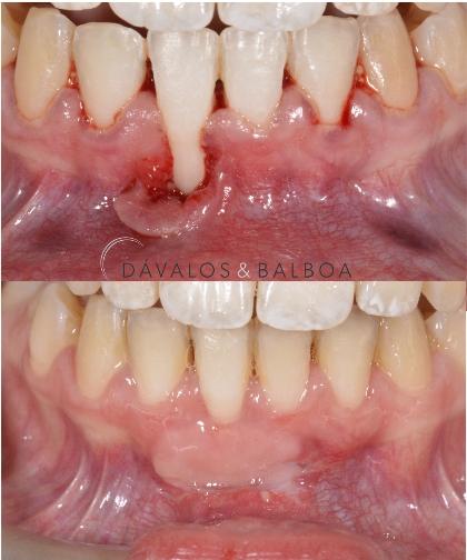 alt+Cirugía Oral en Murcia