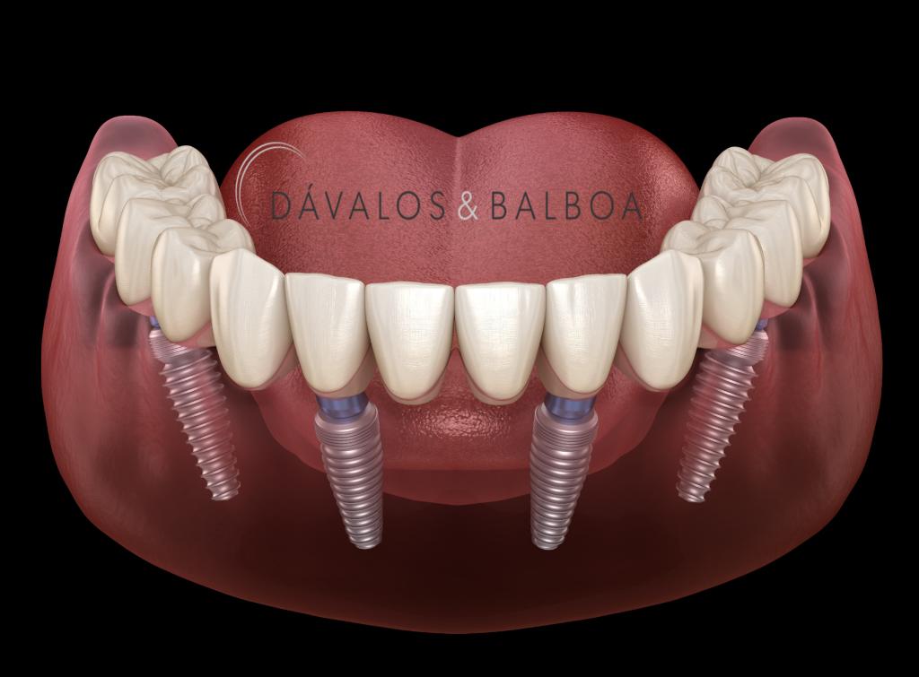alt+Especialista en Implantes Dentales en Murcia