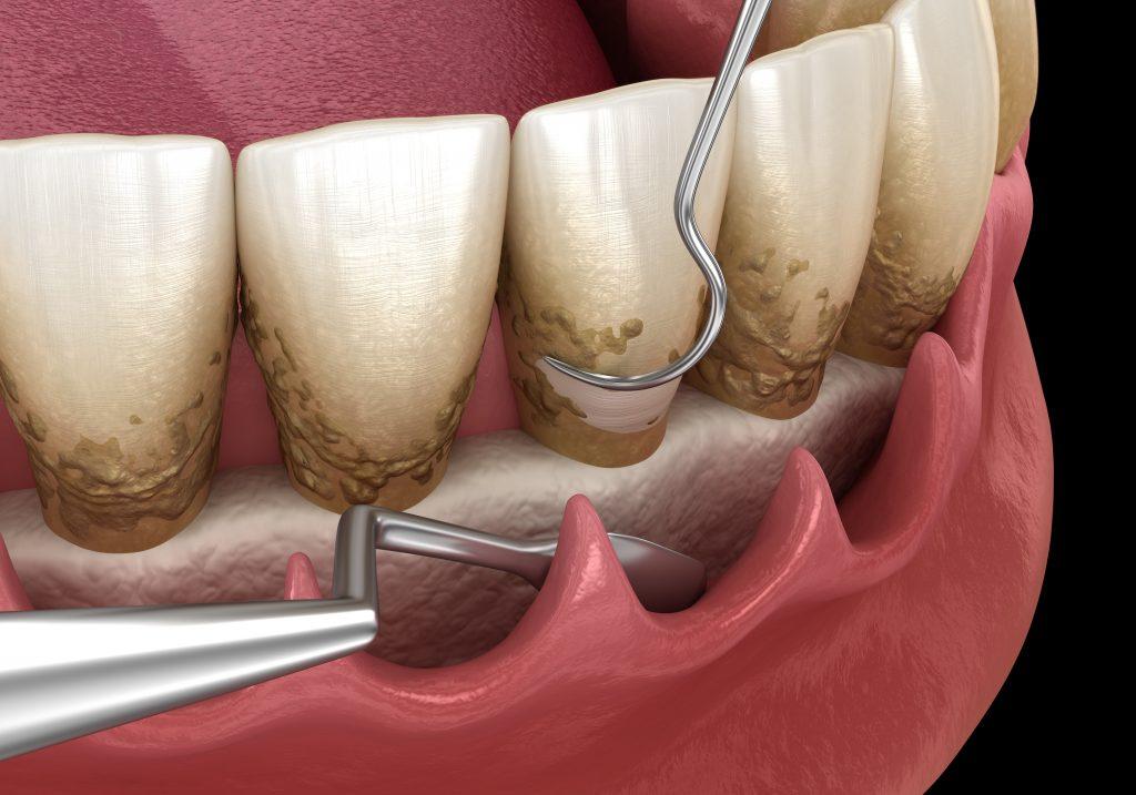 alt+Curetajes o Limpieza Dental  ¿Cuál es la mejor opción para ti?
