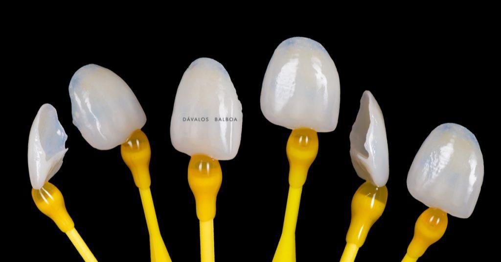 alt+Coronas y Carillas Dentales especialistas