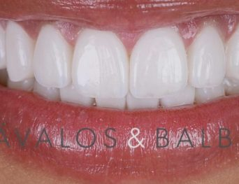 Dávalos & Balboa Mejor Clínica Dental