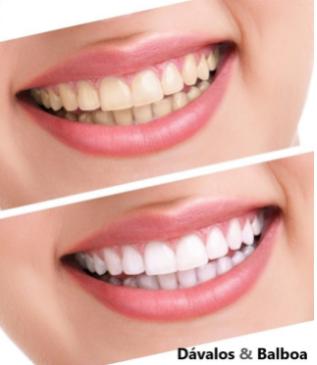 blanqueamiento dental murcia