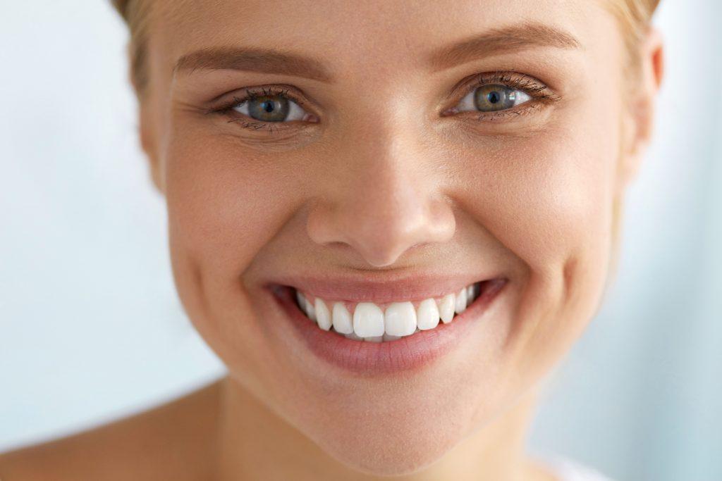 sonrisa carillas